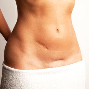 Natural Skin Cancer Treatments Work