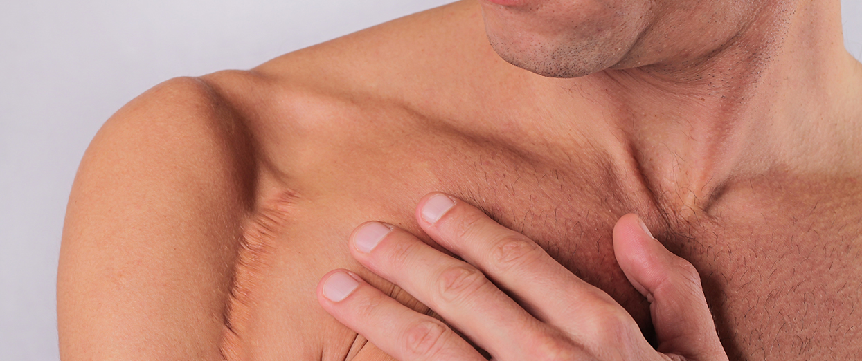 Cicatrices - LPG Cellu M6 endermologie Alliance