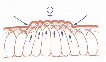 schéma cellulite